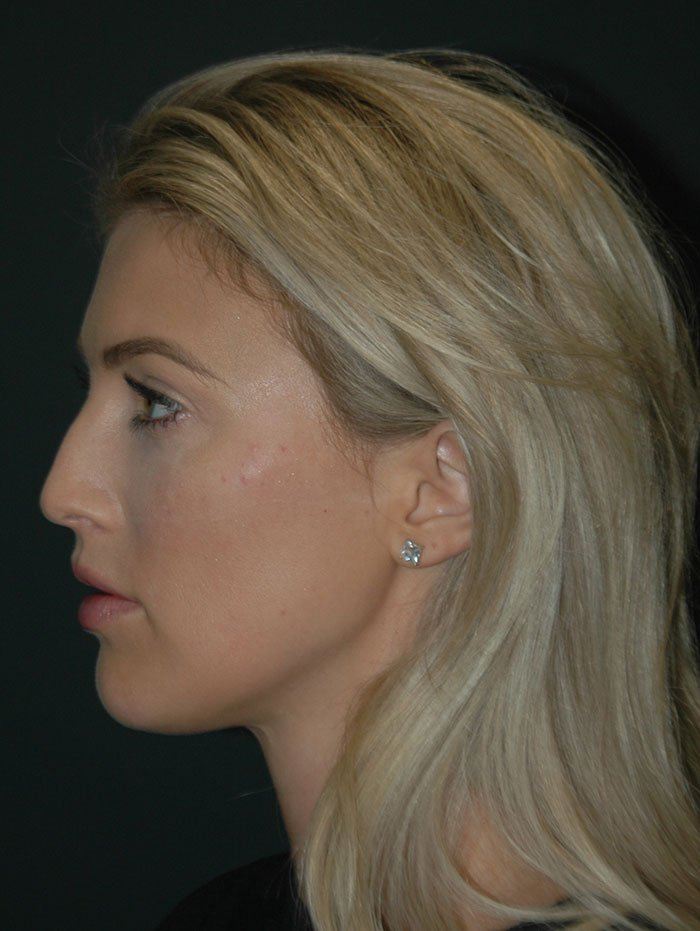 Non Surgical Facelift Before & After Image