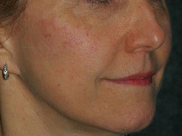 Non Surgical Facelift Before & After Photo