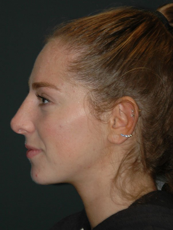 Non Surgical Rhinoplasty Before & After Photo
