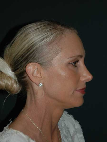 Non Surgical Rhinoplasty Before & After Image
