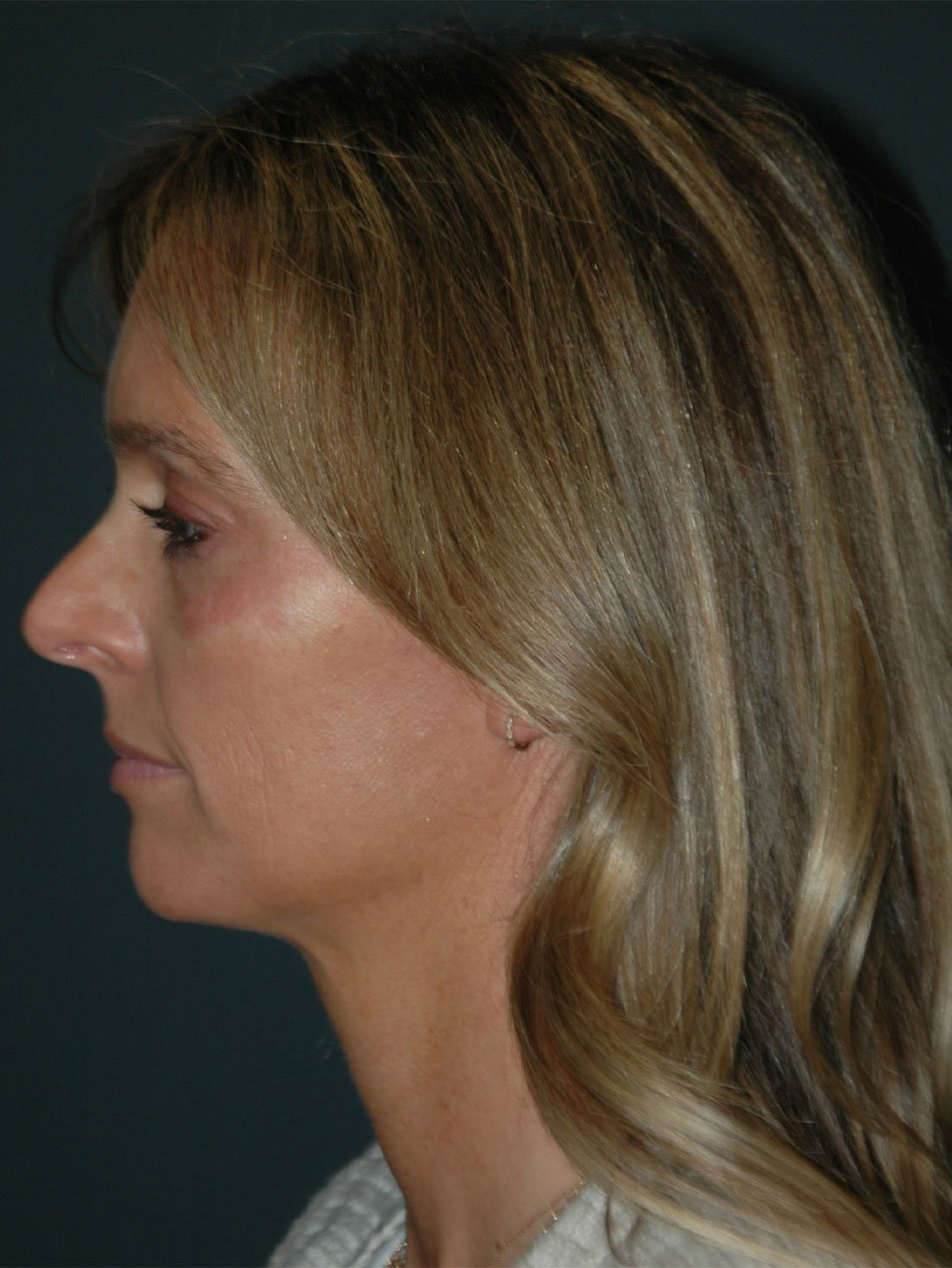 Tear Trough Filler Before & After Photo