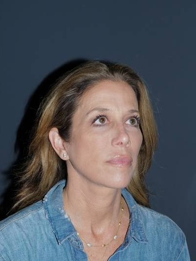 Facelift & Neck Lift Before & After Photo