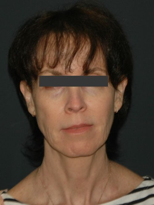Facelift & Neck Lift Before & After Image