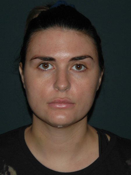 Facial Liposuction Before & After Photo