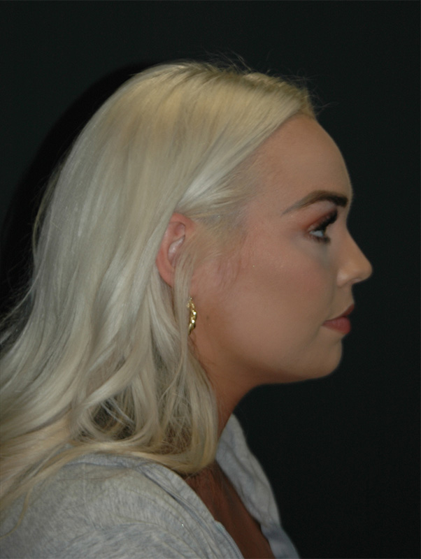Jawline Contouring Before & After Image