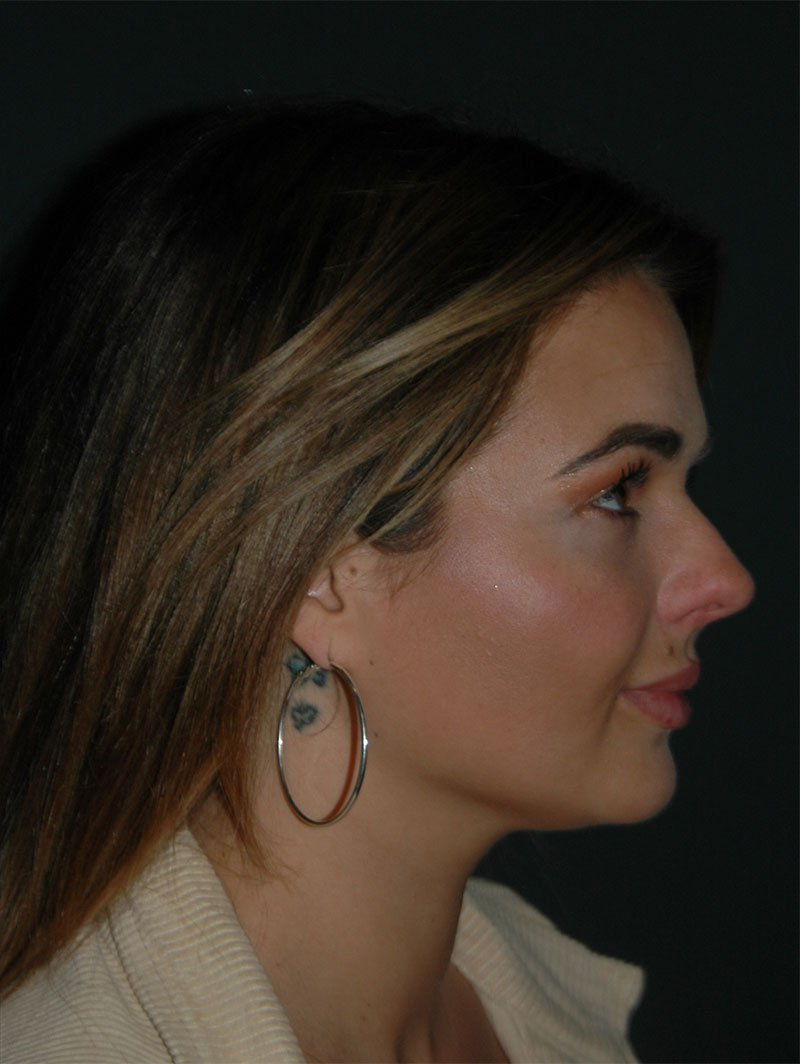 Jawline Contouring Before & After Photo